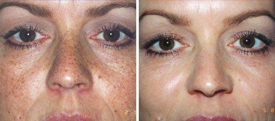 Пилинг Джесснера — очищение и красота кожи
