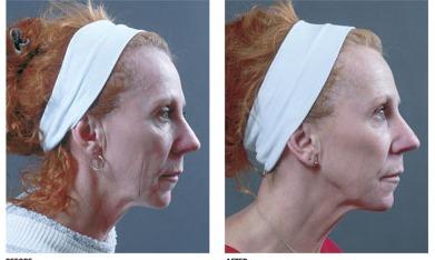 Вакуумный массаж лица (отзывы, фото, результаты)