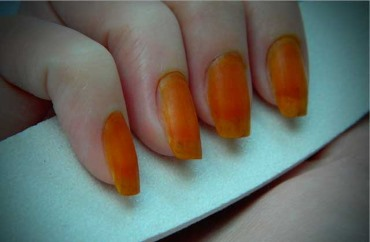 Что будет если намазать ногти йодом
