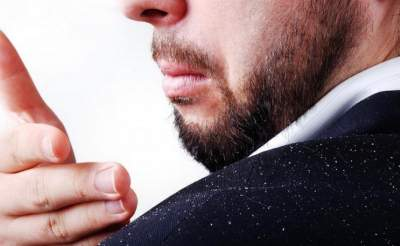 Народные средства от перхоти для мужчин