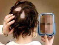 Очаговое выпадение волос у женщин, причины