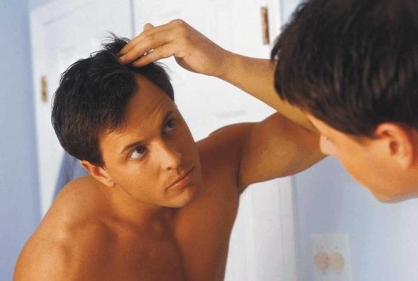 Причина выпадения волос на голове у мужчин