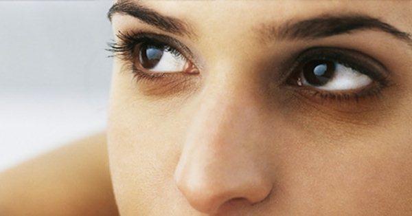 Темные круги под глазами после блефаропластики