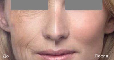 4d омоложение лица fotona + Отзывы