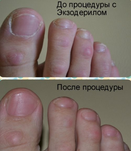 Грибок большого ногтя как избавиться отзывы