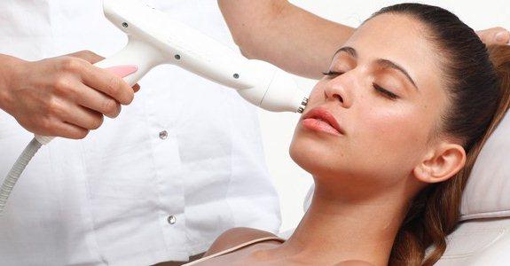 Фракционная мезотерапия кожи лица — эффективность