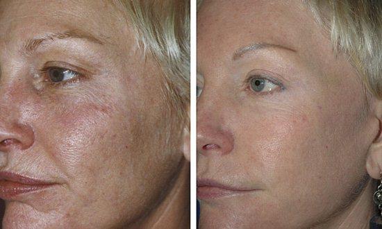 Фракционное омоложение кожи лица. Фото, отзывы