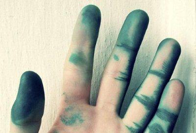Как отмыть зеленку с кожи рук