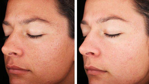 Как выбрать пилинг для лица комбинированная кожа
