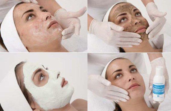 Как выбрать пилинг для лица. Комбинированная кожа