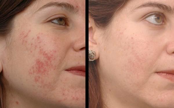 Крем гель Циновит для проблемной кожи: отзывы