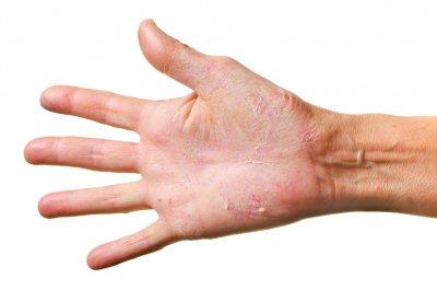 Почему трескается кожа на пальцах рук. Лечение