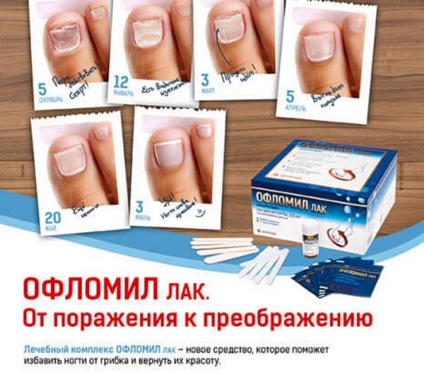 Противогрибковый лак для ногтей «Офломил» (цена)