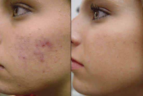 Мазь ретиноловая для кожи лица