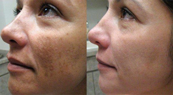 Ретиноловый пилинг: процедура фото: до и после, Секреты красоты и здоровья женщины