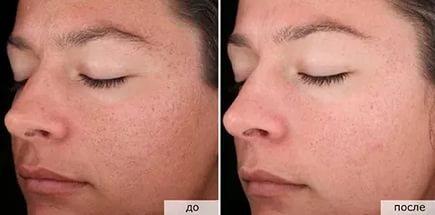 Ретиноловый пилинг: процедура + фото: до и после