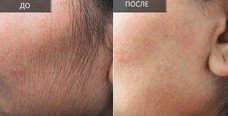 Риванол Деп — эффективное средство для удаления волос