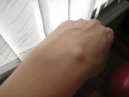 Шишки на руках под кожей. Причины + Фото