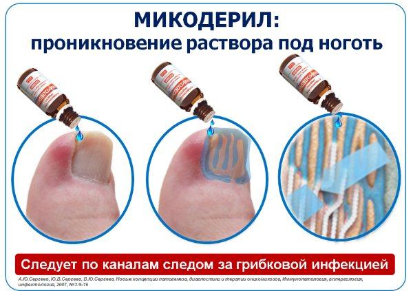 Средство от грибка ногтей на ногах «Микодерил»