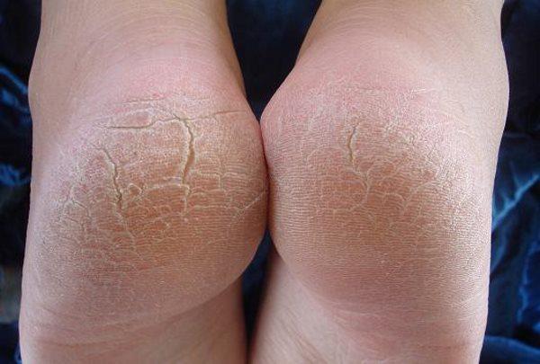 Сухая кожа на ступнях ног: причины