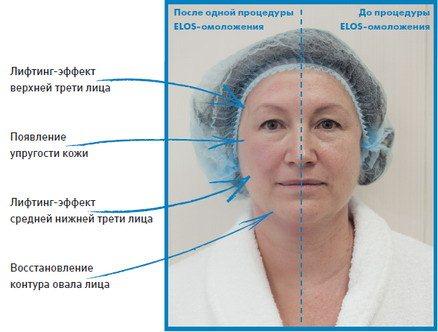 elos-omolozhenie-litsa-otzyivyi-onkologov-i-vrachey-3