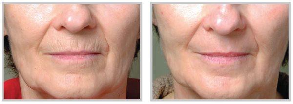 Фракционная мезотерапия кожи лица: эффективность процедуры