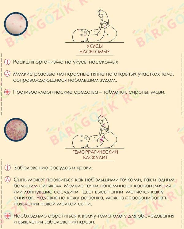 melkaya-syip-na-litse-u-grudnichka-3