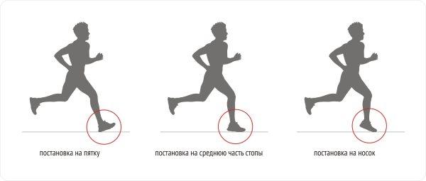 Бег при варикозном расширении вен на ногах