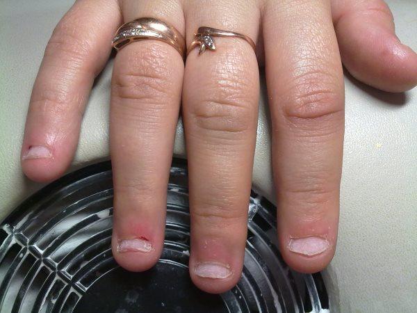 грибок ногтей фото после наращивания