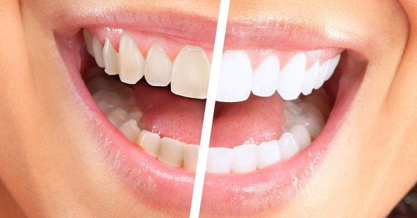 Как чистить зубы содой, чтобы отбелить