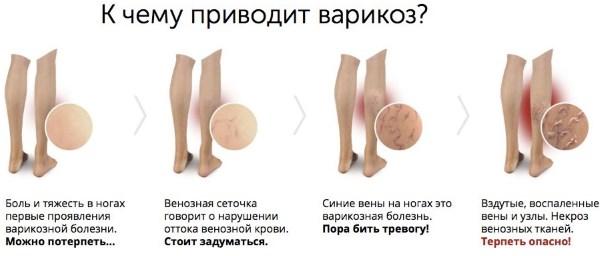 Стадии варикоза вен на ногах