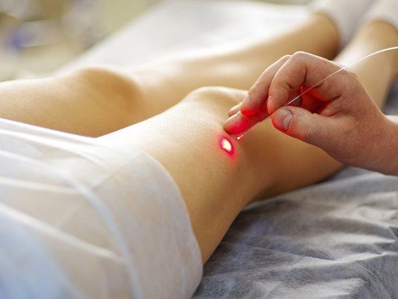 Лечение варикоза вен на ногах лазером. Отзывы
