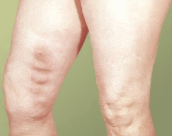 Лимфодренажный массаж ног в домашних условиях, Секреты красоты и здоровья женщины