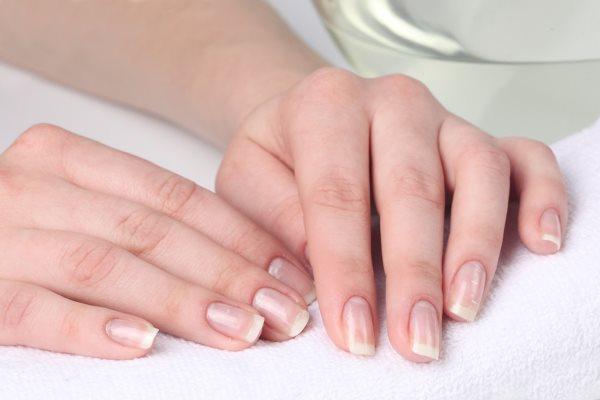 Ломкость ногтей: причины и лечение у женщин