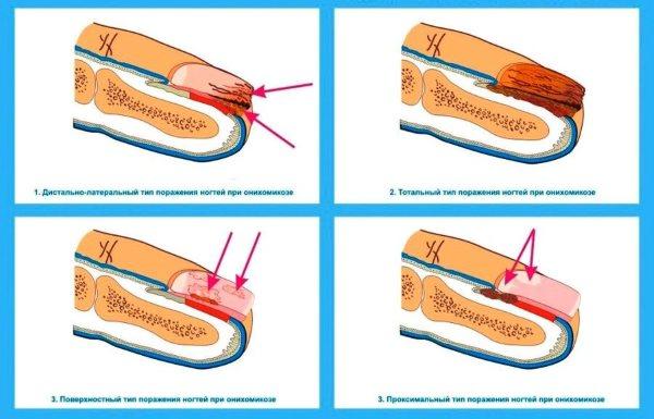 Онихомикоз ногтей, лечение. Препараты недорогие, но эффективные