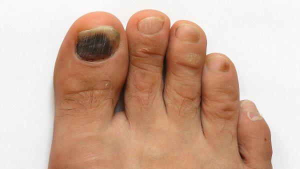 Противогрибковое средство для ногтей ног (недорогое)