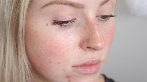 Прыщи от пота на лице – как избавиться