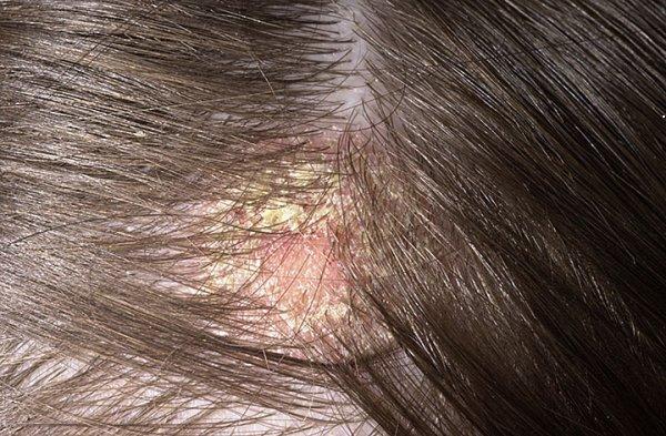 Себорея кожи головы: лечение медикаментозное и профилактическое