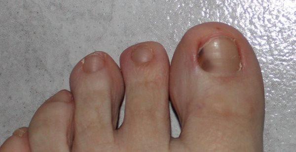 Травма ногтя большого пальца ноги. Лечение ногтя