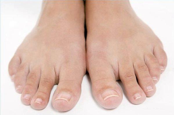 Утолщение ногтя на большом пальце ноги