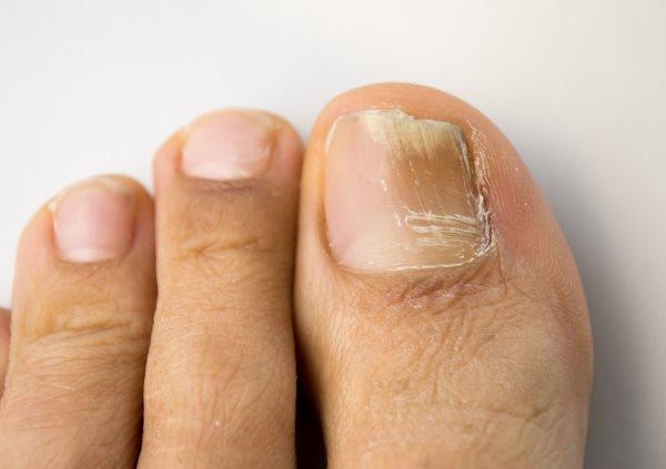 Если грибок ногтя только на мизинце на ногах