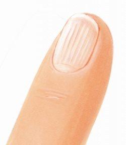 Если ногти растут волнами: причины и лечение
