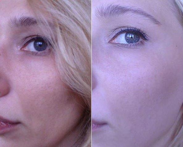 Хлористый кальций в косметологии для лица