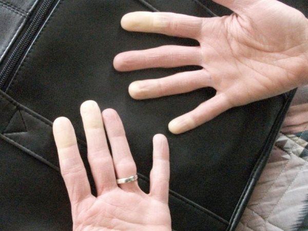 Руки, которые начинают облазить.