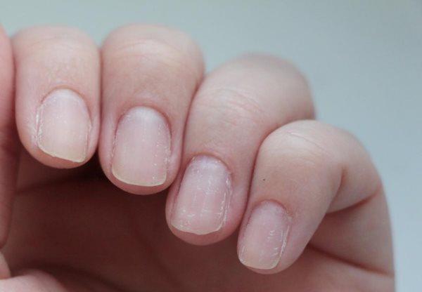 Тонки ногти после шеллака.