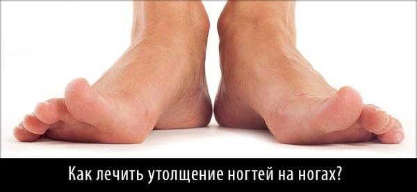 Ноготь растет бугром из-за утолщения. А это нужно лечить.