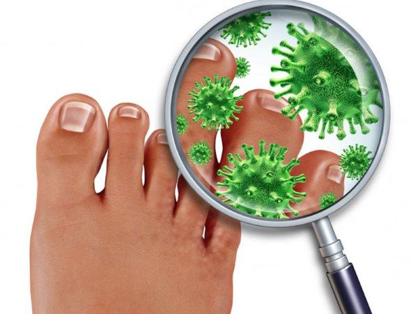 Микробы грибка на ноге под микроскопом.