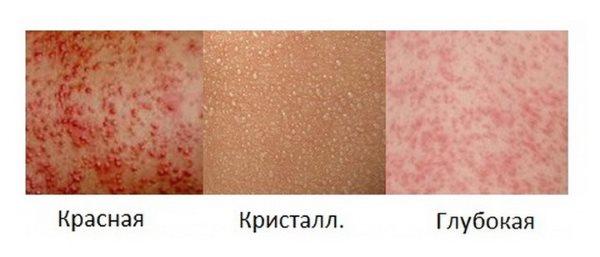 Потничка у грудничка (фото). Лечение потницы