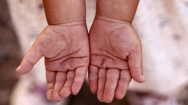 Шелушащиеся детские руки.
