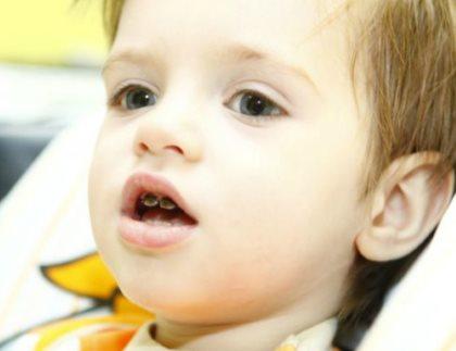 Зачем серебрят зубы детям. Плюсы и минусы серебрения зубов